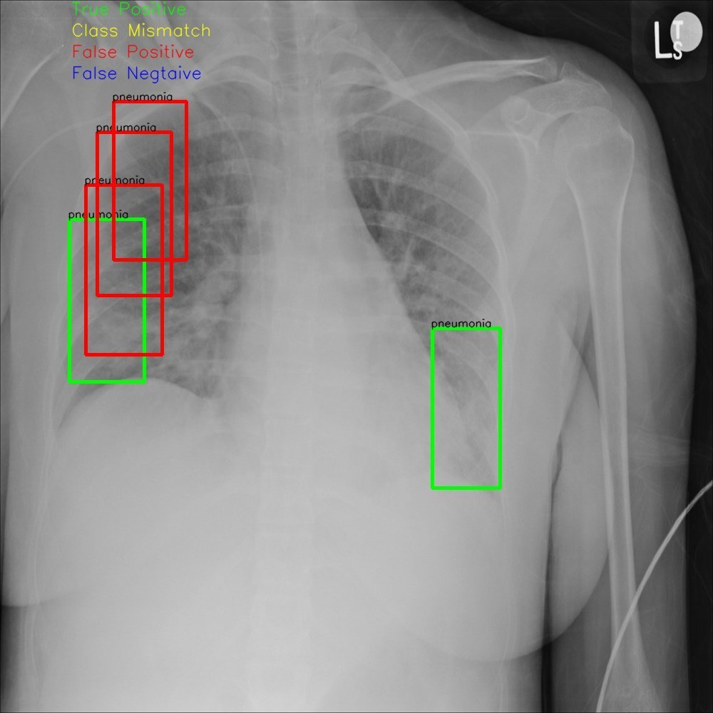 Detecting Pneumonia